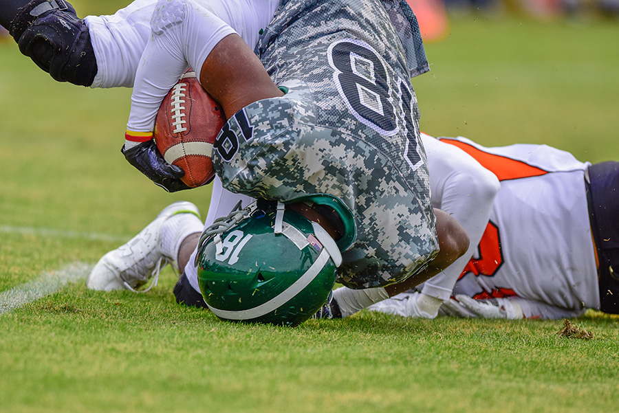 CT Scan vs  MRI – What's Best for a Sports-related Concussion
