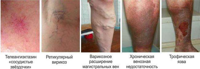 tratați un ulcer cu varicoză)