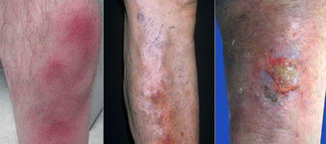 simptomele gangrenei în varicoză