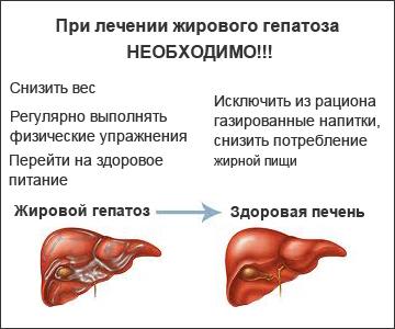 lupus vă provoacă să pierdeți în greutate