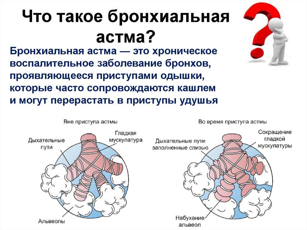 Лечение артроза и артрита народными средствами. Причины