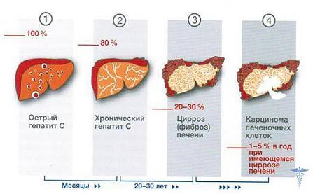 Как гепатит с влияет на потенцию