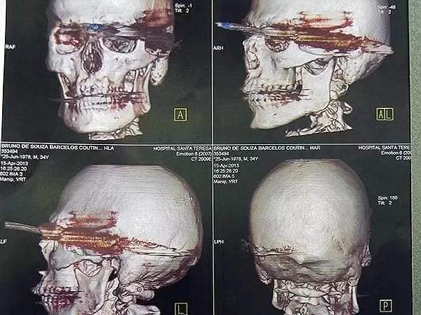 Un arpón le atravesó la faringe y sobrevivió - Fotos