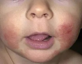 atopic eczema on baby face