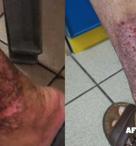Eczema Bumbs on Legs (Before After Picture)