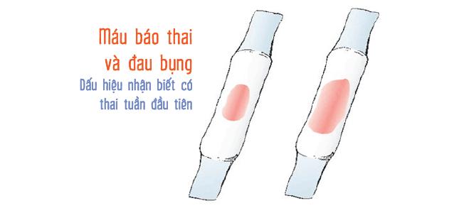 Dấu hiệu mang thai đầu tiên: Ra máu trước kỳ kinh