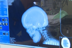 Scan showing thickened bone in the patient's cranium.