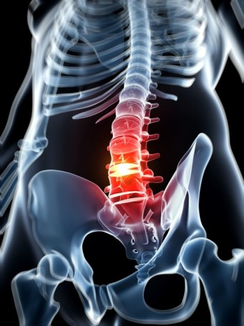Herniated Spinal Disc Surgery in Minnesota