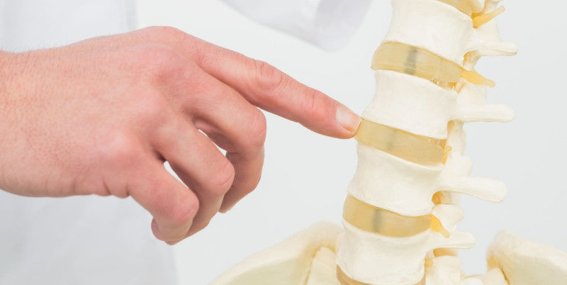 cervical stenosis of the spine