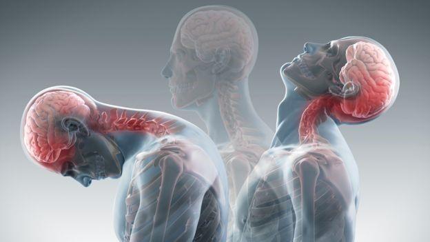 nihajna poškodba vratne hrbtenice