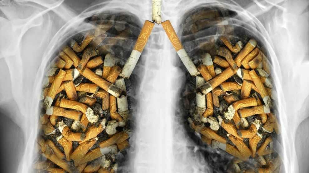ปอด ที่สูบบุหรี่ นานๆ