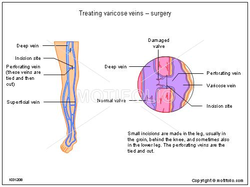 Treating varicose veins - surgery Illustrations