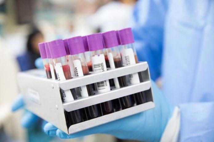 Governo abre crédito de R$ 1,9 bilhão para produção e aquisição de vacina contra o coronavírus