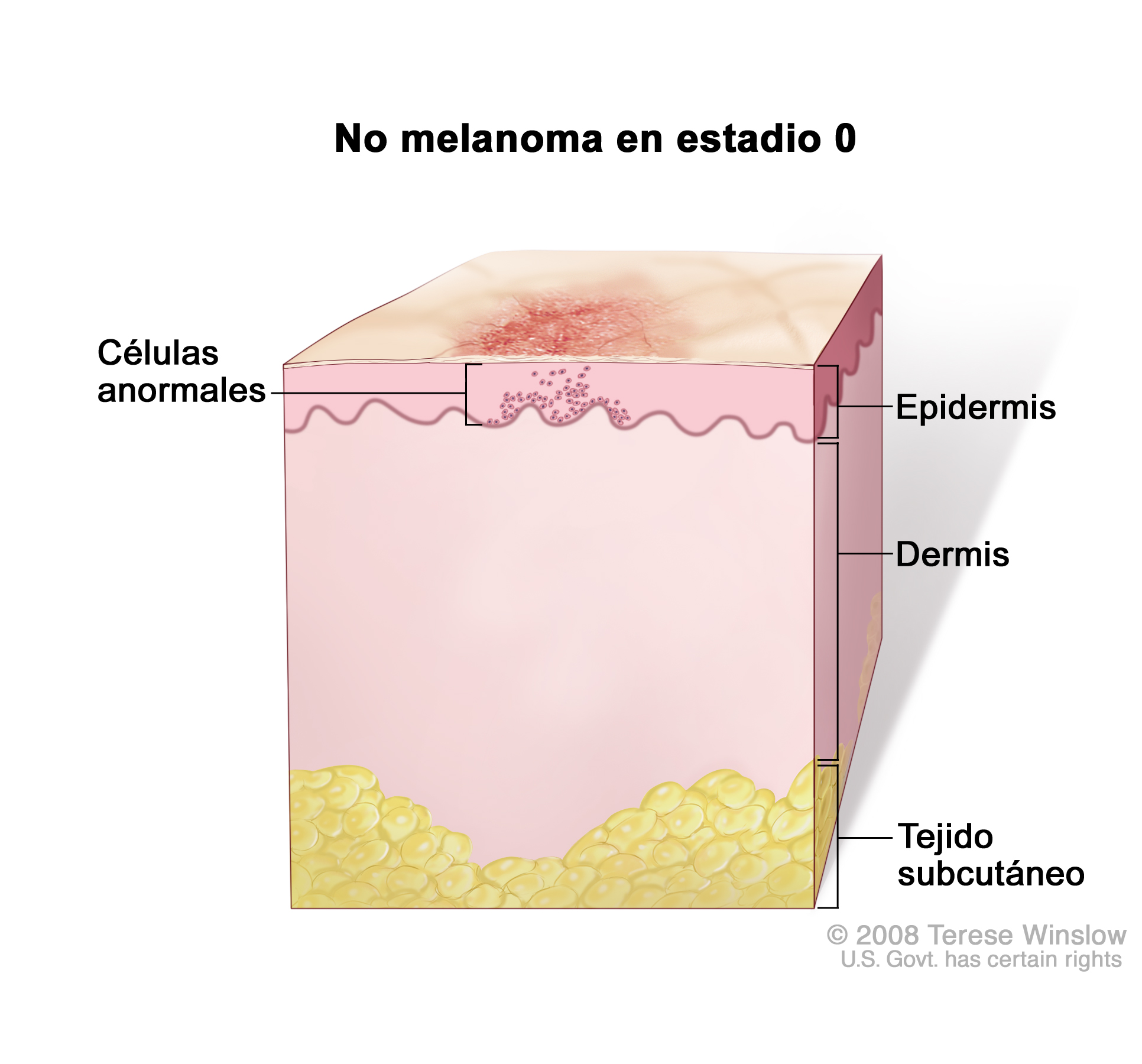 Stage 0 Nonmelanoma Skin Carcinoma In Situ On The Head And
