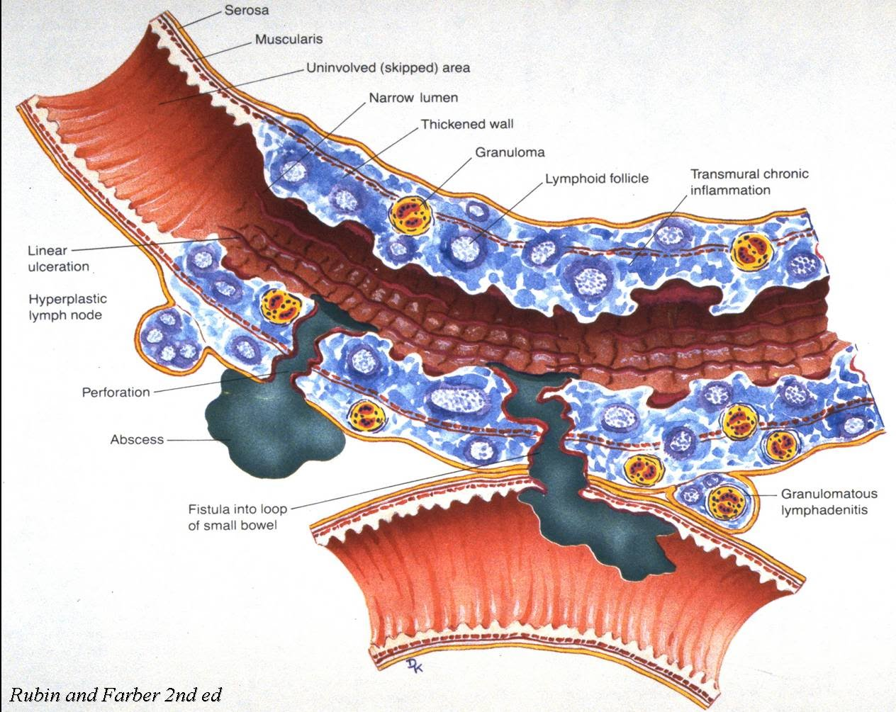 An Advanced All Natural Guide To Treating Crohn S Disease