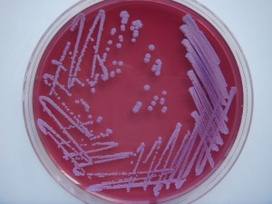 Colonies of Burkholderia pseudomallei on Ashdown agar after 96 hours incubation at 37ºC []