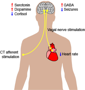 Figure 2. How touch therapy can benefit ASD patients. Activating touch processing pathways can decrease levels of the stress hormone cortisol and increase levels of dopamine or serotonin, neurotransmitters that control mood, motor behavior, and impulse control. These effects likely occur through stimulation of CT afferents and subsequent stimulation of the insular cortex. Stimulating the vagal nerve can decrease heart rate and levels of GABA as well as decrease incidence of seizures.