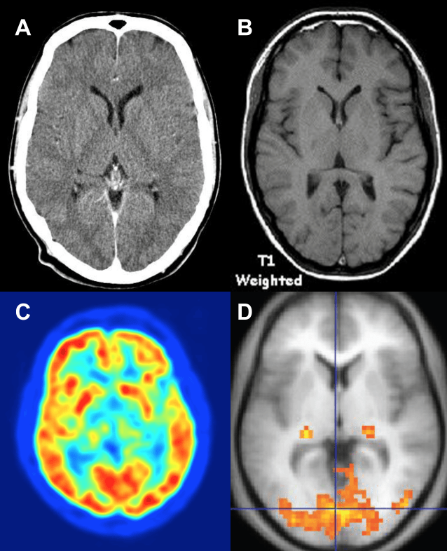 Figure 1. (A) Computerized axial tomography (CT or CAT scan) combines many X-ray images, collected using small doses of radiation, to create 3-D images of the human brain. (B) Magnetic resonance imaging (MRI; right) measures the magnetic properties of various tissues in the human brain. Functional brain activation can be measured using (C) positron emission tomography (PET) and (D) functional magnetic resonance imaging (fMRI; here, laid on top of a structural MRI for reference). In both functional images, warmer colors represent brain areas with more activity. In PET this is inferred by measuring metabolism, whereas in fMRI it is inferred based on where oxygenated blood is. While each imaging method has its own strengths, one benefit of MRI (both structural and functional) is that it does not expose the participant to radiation. (Wikimedia)