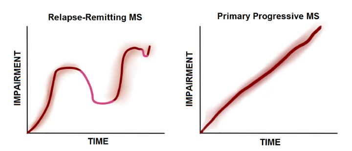 Figure 1: Multiple sclerosis is not a single disease. The majority of patients (around 85%) suffer from relapsing-remitting MS, which means they may experience periods when the symptoms get better without any treatment. In contrast, patients suffering from a less common, primary progressive MS, will have continuously worsening disease from the time of diagnosis.