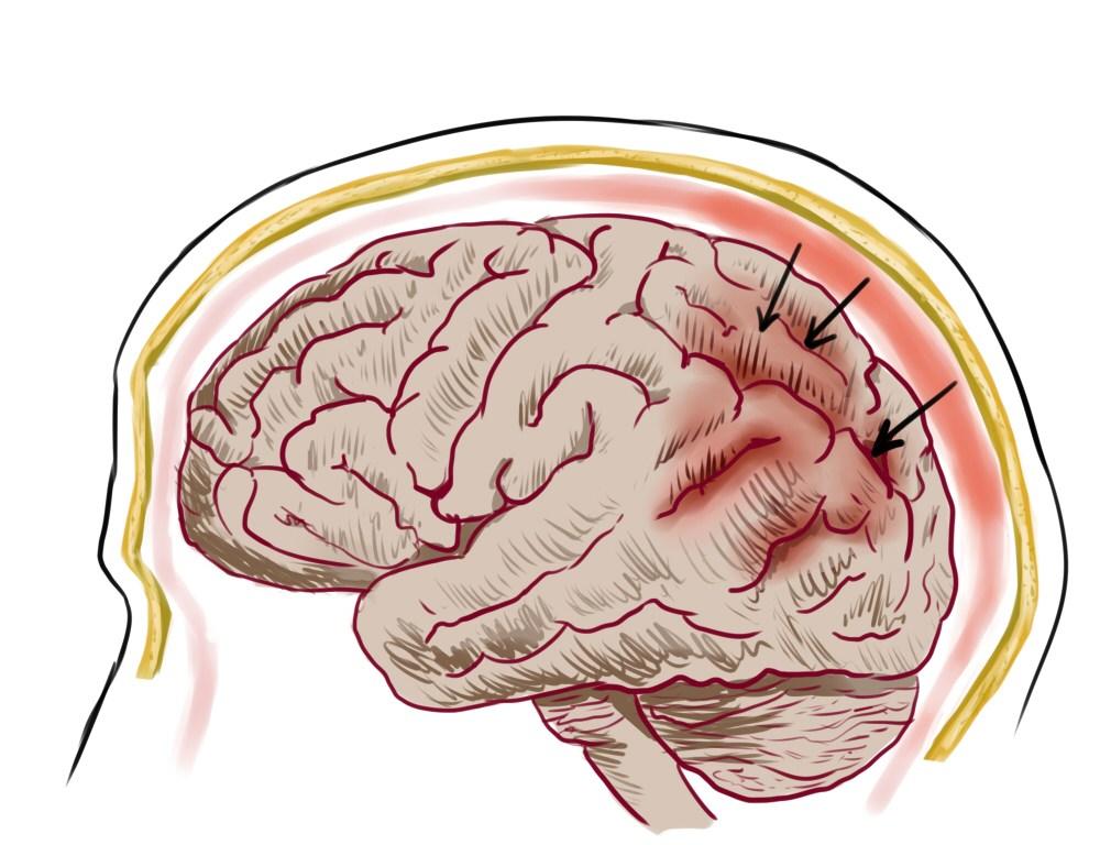 Ocrelizumab : 원발성 진행성 다발성 경화증의 첫 번째 치료법-Science in the News