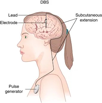 """Figure 1: Basic DBS design. Patients are placed in a headframe while an MRI scan is taken to get a map of your brain and determine where the electrode(s) will be placed. They then receive local anesthesia on their skull, where surgeons make a small hole to slide the electrode and its lead to the target area. Patients are typically awake for this portion of the surgery so doctors can test the stimulation and ensure the electrode is in the correct location. With the electrode properly in place, patients are then put under general anesthesia so the pulse generator can be implanted in their chest. Pulse generators are remote controlled and programmable to customize stimulation frequencies. (Image from """"Somatic Treatments for Mood Disorders"""" Liansby et al, Neuropscyhopharmacology 2011)"""