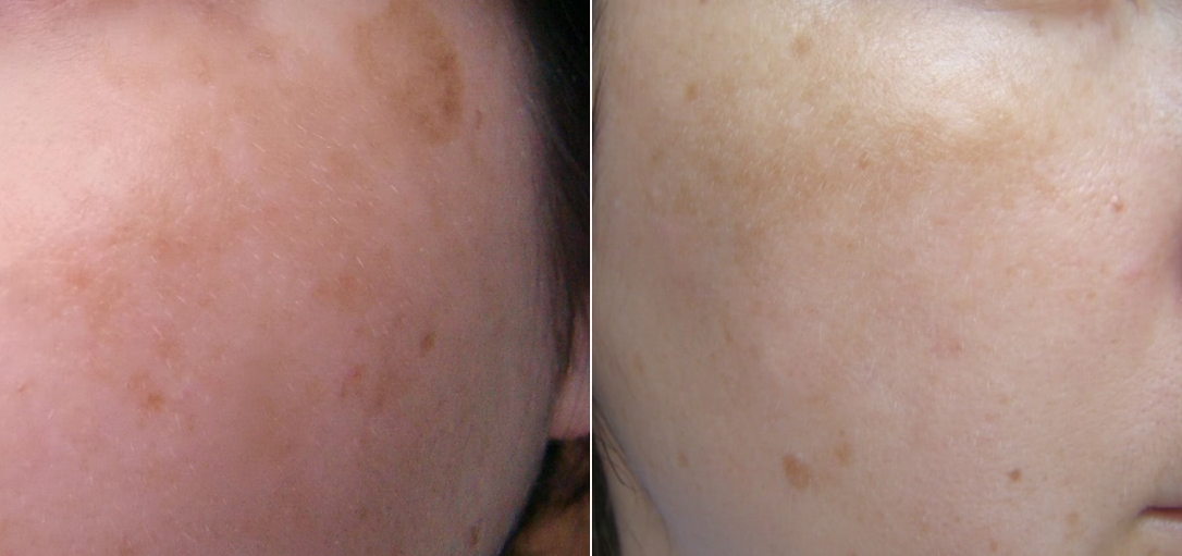 After 6 months of use Tretinoin