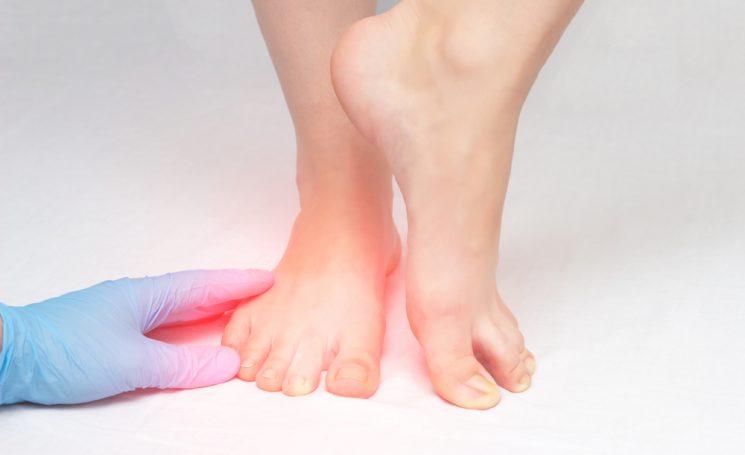 Causes of toenail fungus