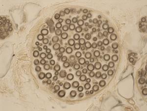 Diagram of nerves