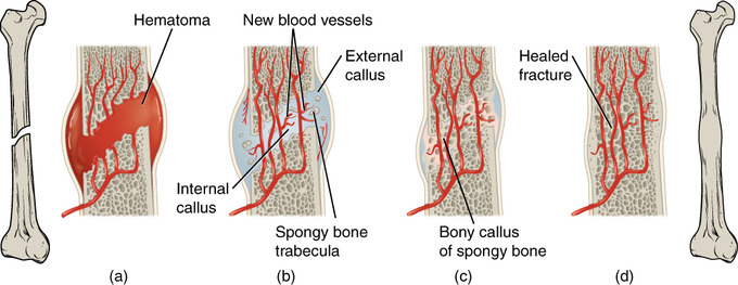 An image that shows stages of fracture repair
