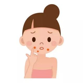 顎ニキビの原因と治し方や対策と予防法