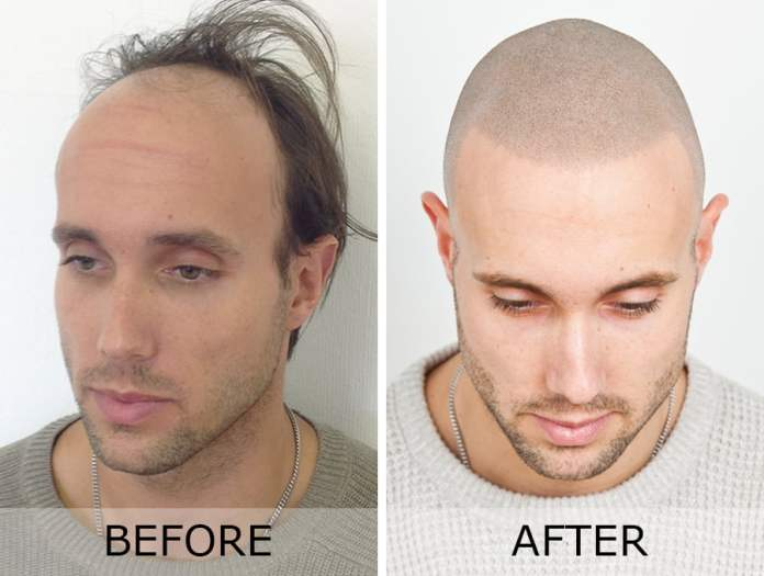 What is Scalp Micropigmentation?   SMP Explained   Skalp