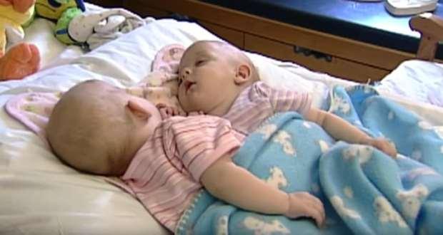 Когато решиха да разделят сиамските близначета