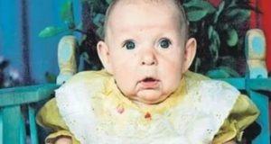 Дете се роди с лице на старица ето как изглежда на 24 години