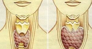 Десетки жени регулираха щитовидната си жлеза за 2 месеца