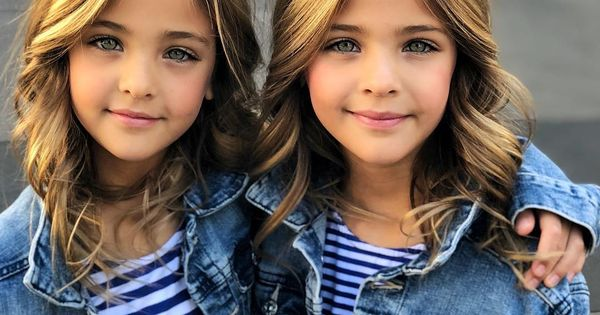 Спомняте ли си най-красивите близначки на света? Ето каква съдба ги застигна (СНИМКИ)