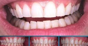 Как да избелите зъбите си само за 3 минути - продуктите ги имате вкъщи. Да започваме: