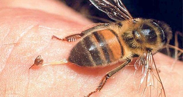 Когато ви ужили пчела оса или стършел просто направете това и проблеми няма да имате
