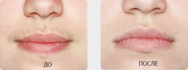 Усы-у-женщин-причины-удаление-4