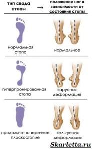 Ортопедические-стельки-3