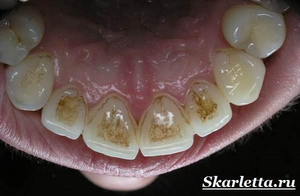 Камни-на-зубах-Лечение-и-профилактика-зубного-камня-2