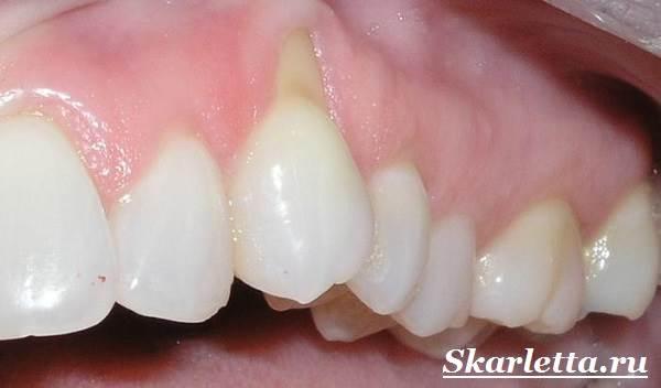 Камни-на-зубах-Лечение-и-профилактика-зубного-камня-5
