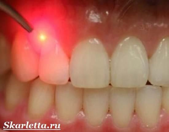 Камни-на-зубах-Лечение-и-профилактика-зубного-камня-9