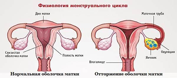 Болезненные-месячные-Причины-Лечение-2