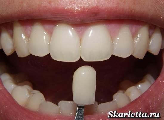 Виниры-на-зубы-их-классификация-способы-установки-цены-4-1