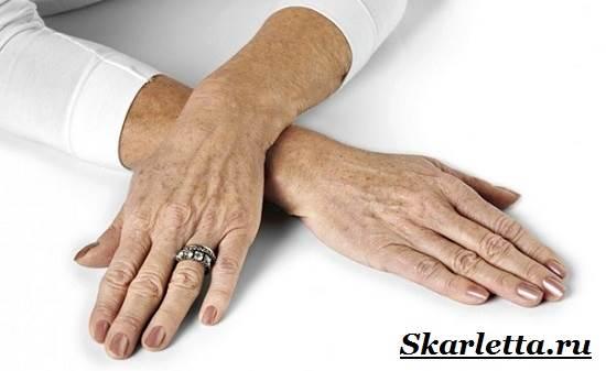 Пигментные-пятна-на-руках-Причины-появления-и-борьба-с-пигментными-пятнами-на-руках