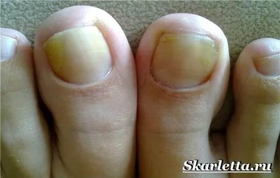 Почему-желтеют-ногти-25