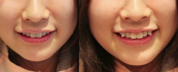 Yaeba - Japonés con dientes torcidos