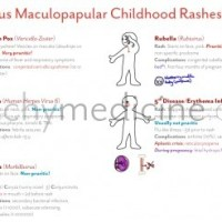 Maculopapular Childhood Rashes