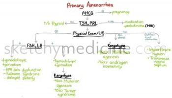amenorrhea---primary
