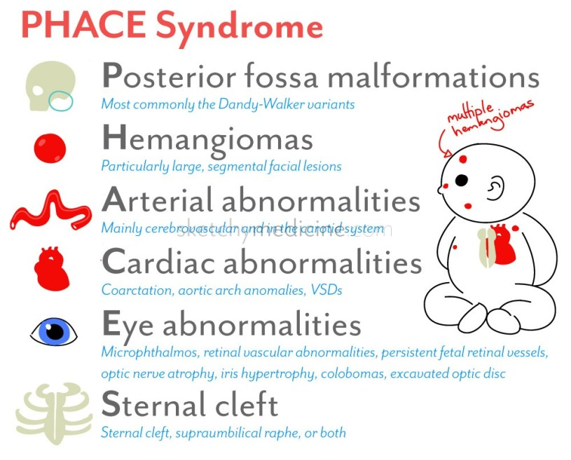 Image result for PHACE syndrome